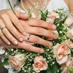 chirurgia estetica prima del matrimonio